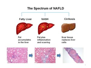 Non Alcoholic Fatty Liver Disease