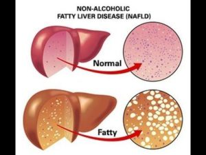 Non Alcoholic Fatty Liver Disease Symptoms