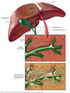 Primary Biliary Cholangitis Life After Surgery