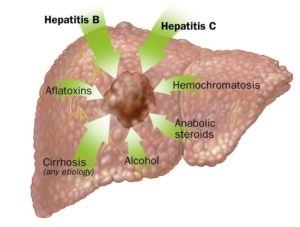 Liver Cancer Causes