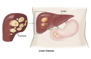 Liver Cancer Prognosis