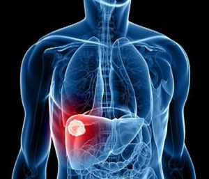 Liver Cancer Surgery Risk
